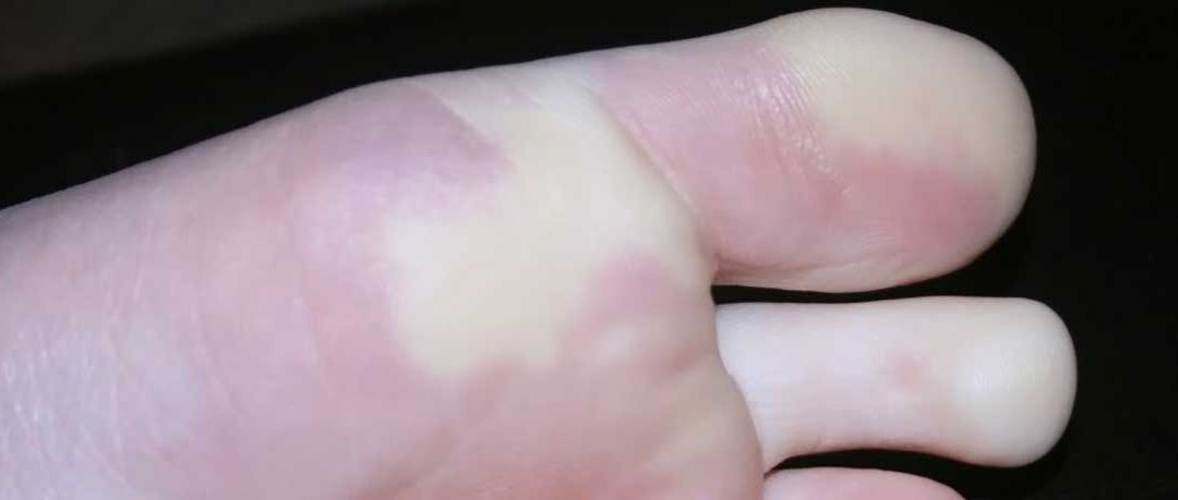 Raynaud's Condition at Eagle-Summit Foot & Ankle
