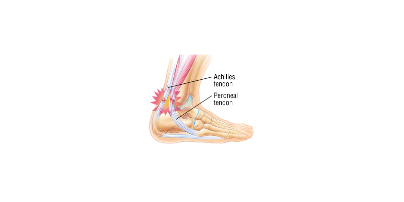 Tendinitis in Your Feet