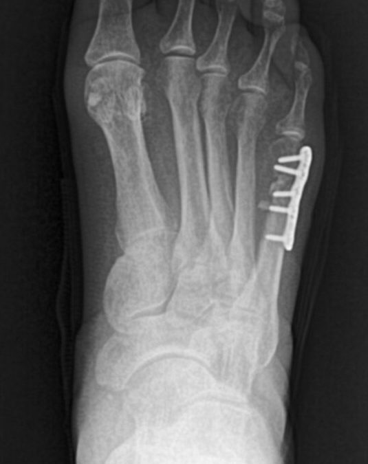 Fifth Metatarsal Fractures