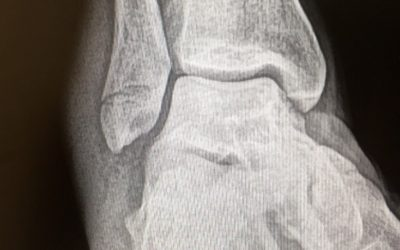 Ankle Fracture – Conservative Management